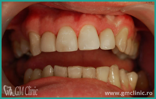 gmclinic-case-1-dupa