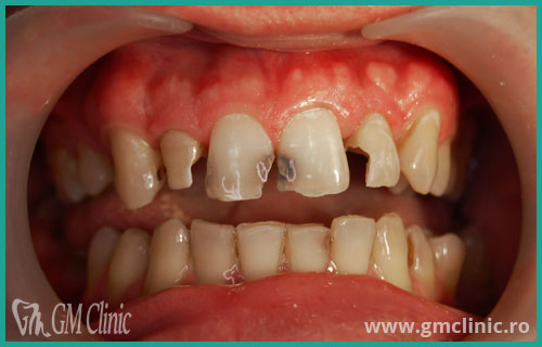 gmclinic-case-1-inainte