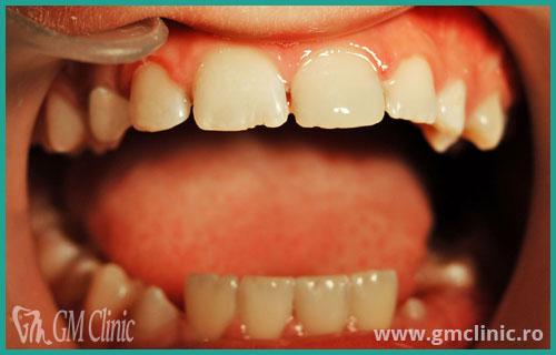 gmclinic-case-10-dupa