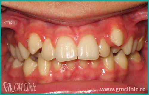 gmclinic-case-11-1