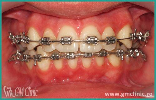 gmclinic-case-11-2