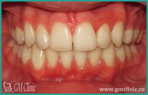 gmclinic-case-11-3