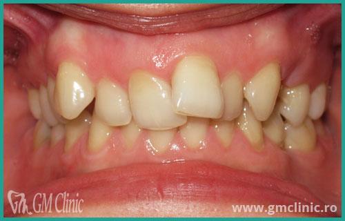gmclinic-case-13-1