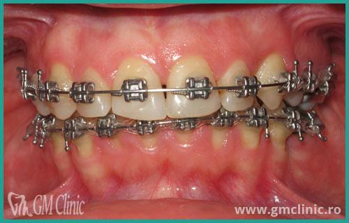 gmclinic-case-13-2
