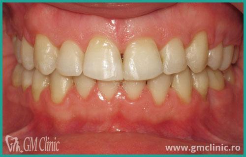 gmclinic-case-13-3