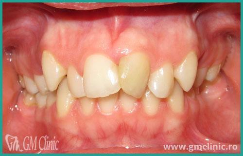 gmclinic-case-14-1