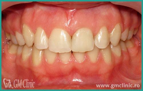 gmclinic-case-14-3
