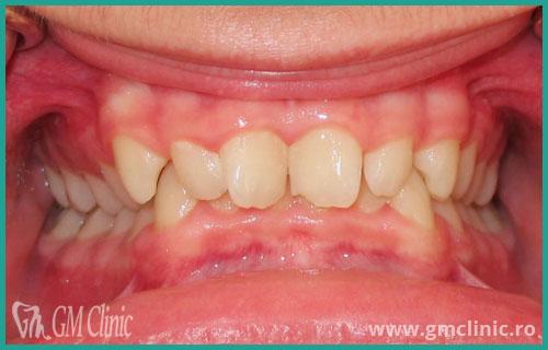 gmclinic-case-15-1