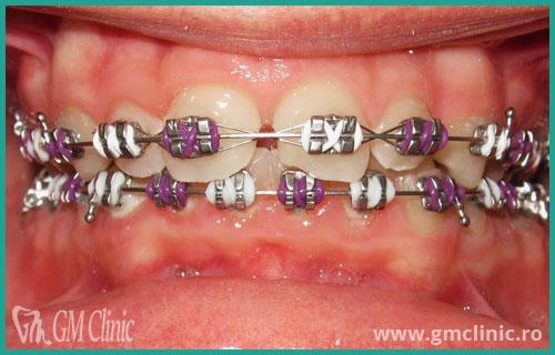 gmclinic-case-15-2
