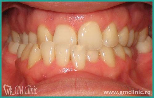 gmclinic-case-16-1