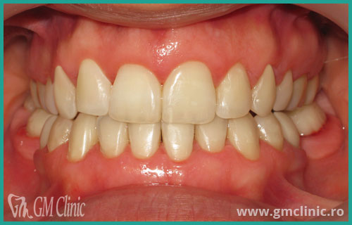 gmclinic-case-16-3