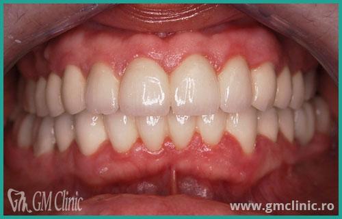gmclinic-case-2-dupa
