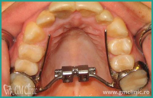 gmclinic-case-3-3