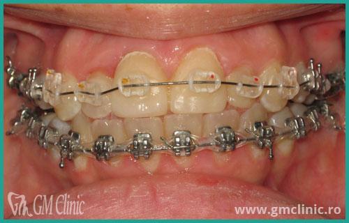 gmclinic-case-3-5