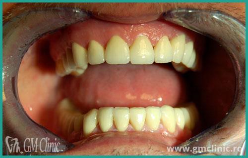gmclinic-case-4-dupa