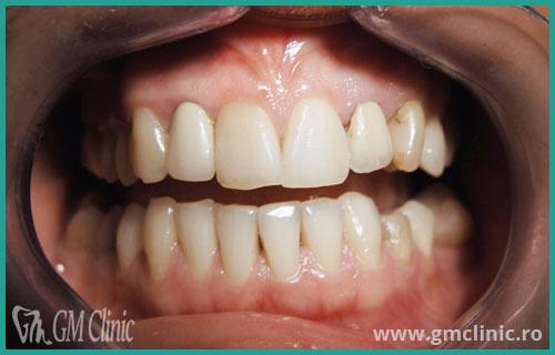 gmclinic-case-6-1