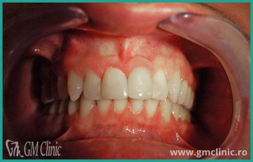 gmclinic-case-7-dupa
