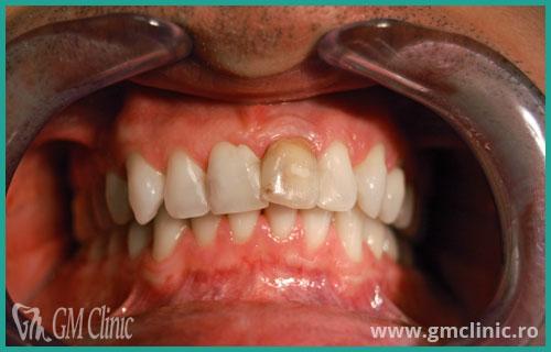 gmclinic-case-7-inainte