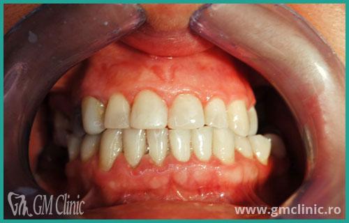 gmclinic-case-8-dupa