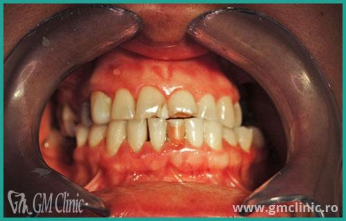 gmclinic-case-8-inainte